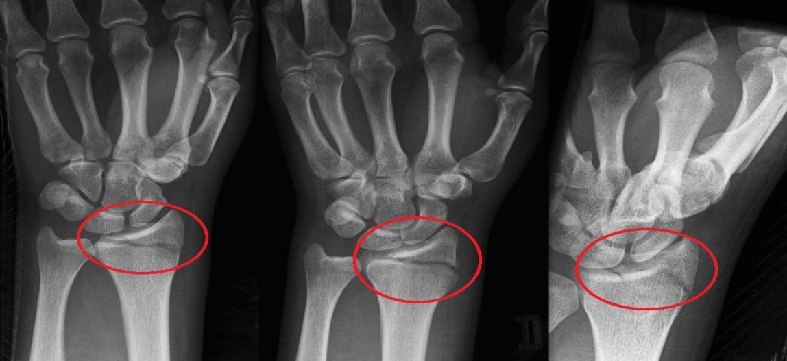 souring sąnariai pašalinti uždegimas sudūrimo artrito