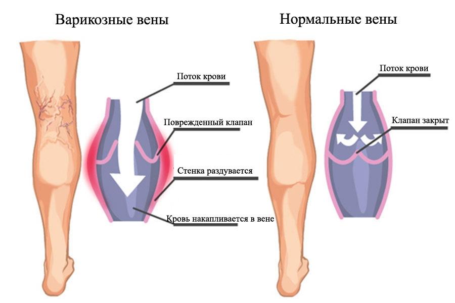 artritas rankas kas tai yra