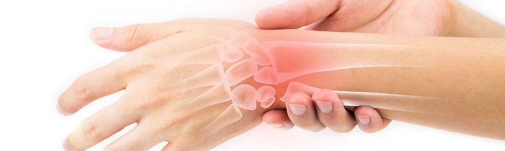 skauda kairiojo riešo sąnarių rankos sąnarių skausmas artrito gydymui