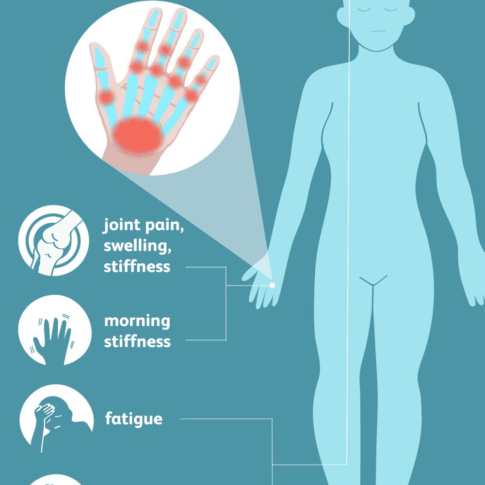 edema in joint o gydyti solidol sąnarių