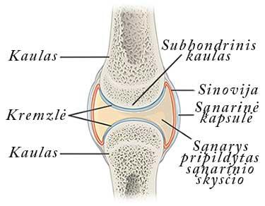 kaip standus sąnarių osteoartrito skauda sąnarį ant piršto gydymo