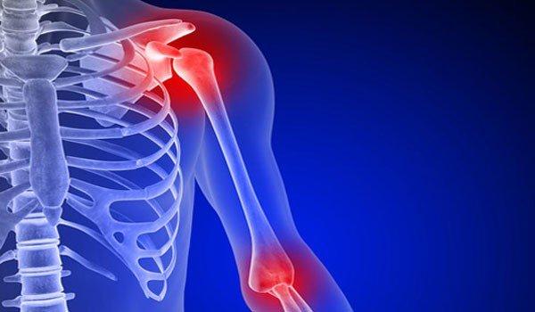 osteoartritas peties sąnario 2 laipsnių gydymas išlaikyti uždegimas virš kulno
