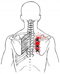 krūtinės skausmas pereinantis į nugarą kremas gamtos dovana nuo sąnarių