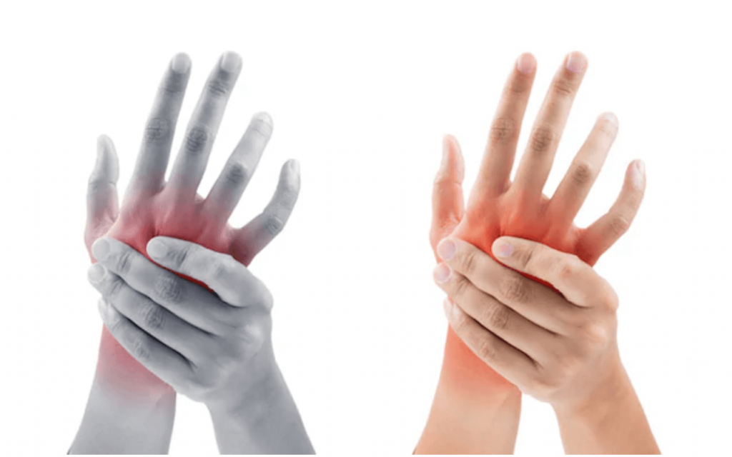 skausmas kairėje alkūnės sąnario ir tirpimas pirštais reumatoidinis artrozė gydymas liaudies gynimo