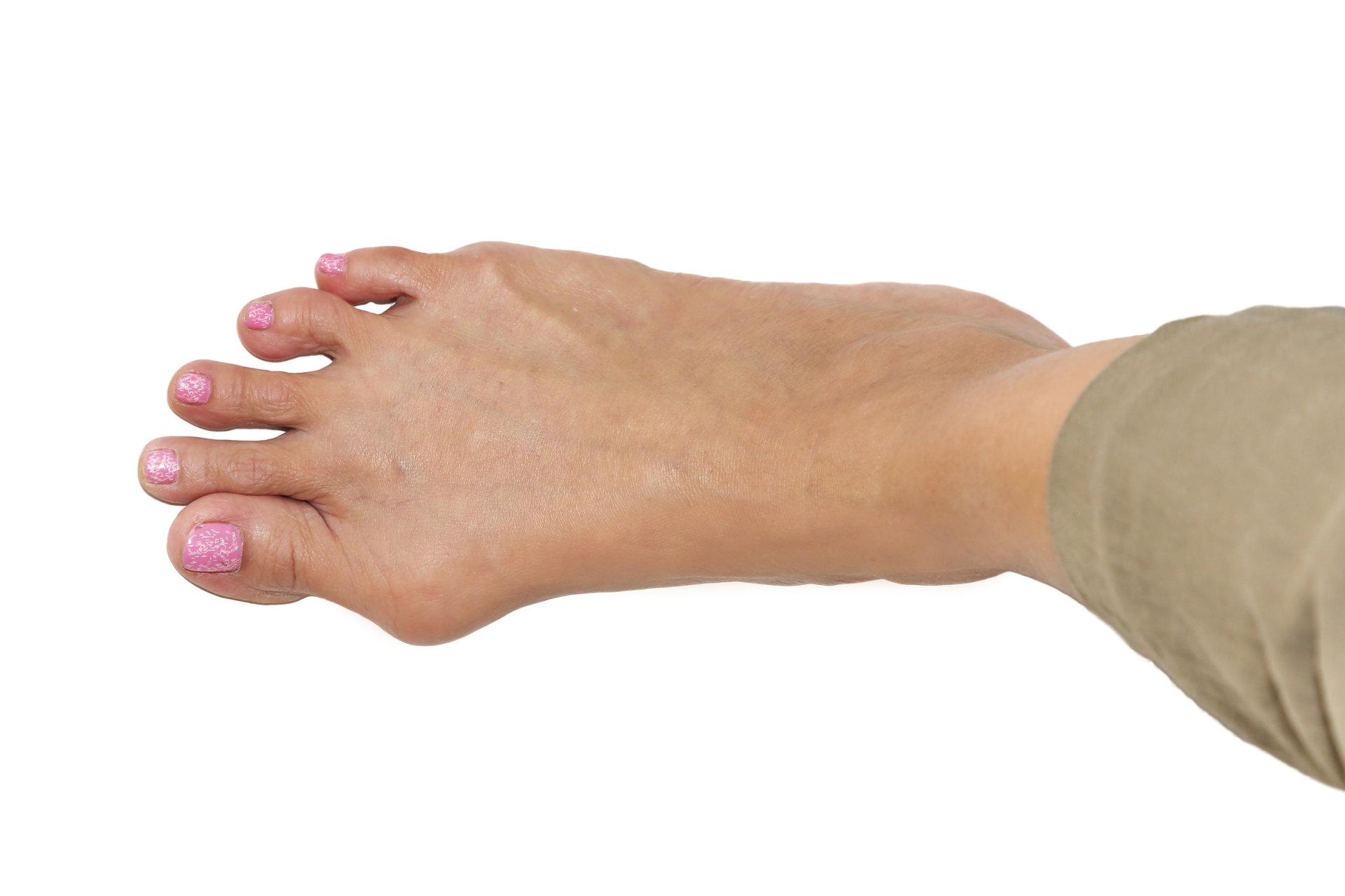 artritas iš piršto pėdos