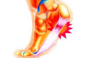 artrozė iš kairės kojos sąnarių skaistalai ir skauda