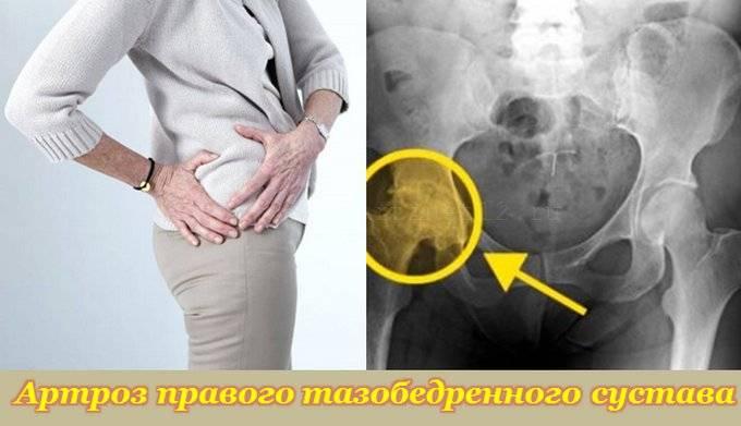 gydymas artrozė 3-4 etapais
