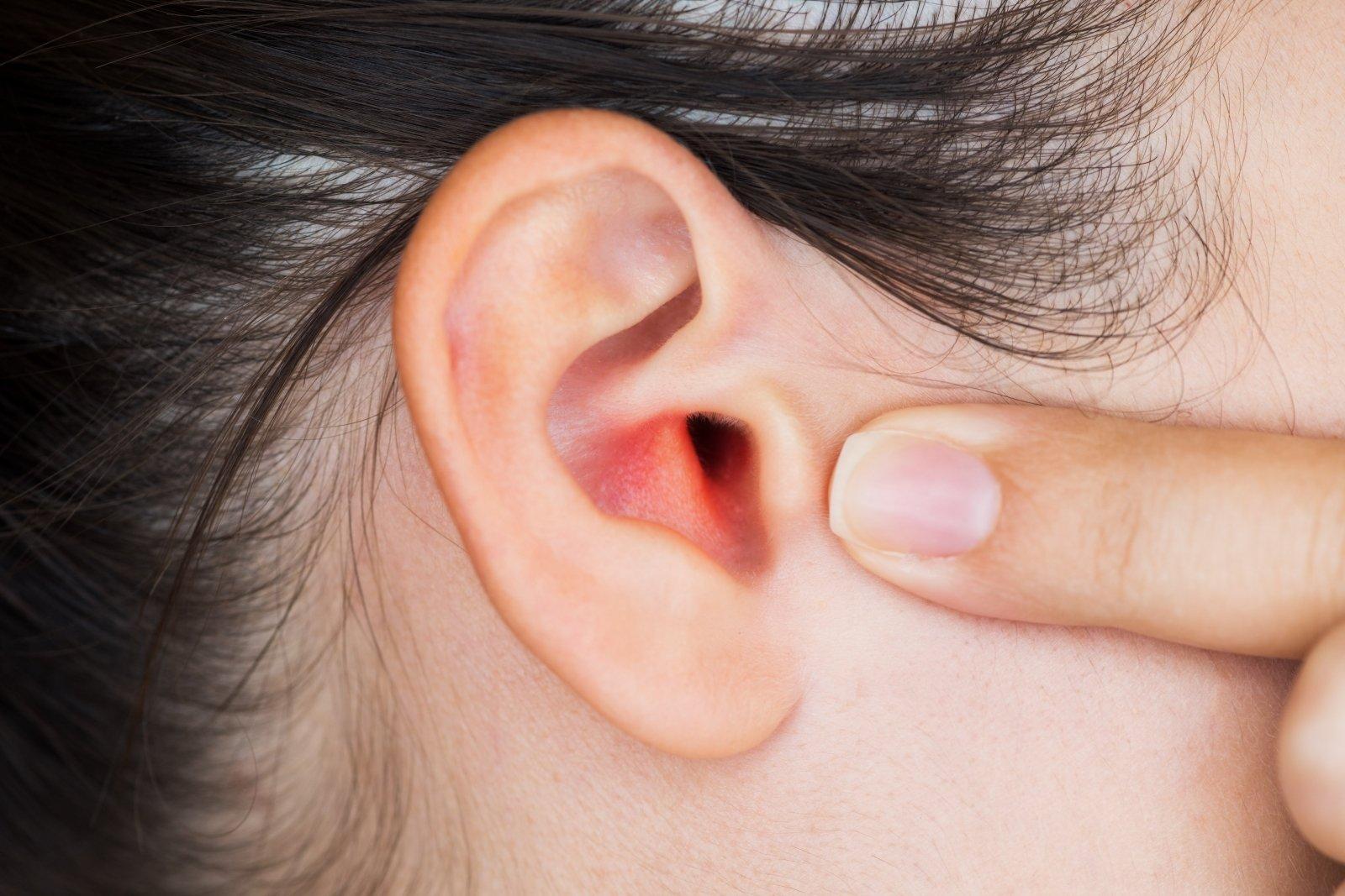 edema alkūnės sąnario traumos skauda šlaunikaulį