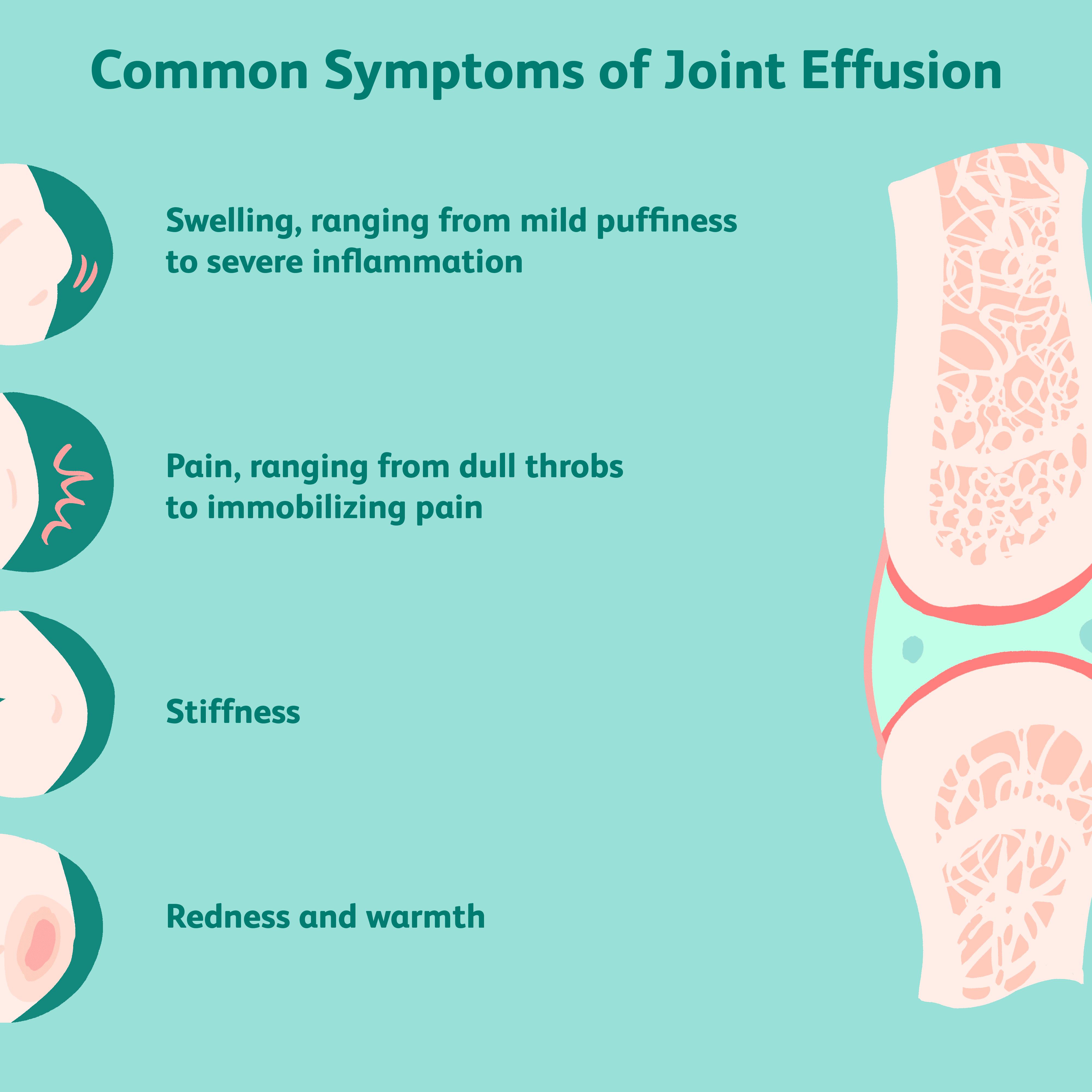 edema in joint vaistas sąnarių skausmas