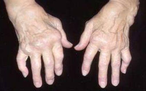 artritas didelių sąnarių