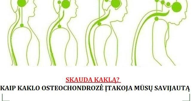 tepalas osteochondrozės kaklo gydymas periarthosis peties sąnario liaudies gynimo priemones