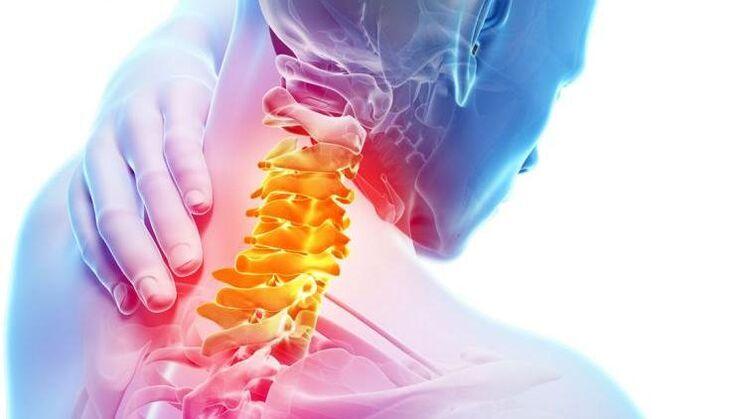 osteochondrozė iš pėdos sąnarių
