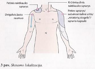 sergančių ligonių gydymas pečių sąnarių