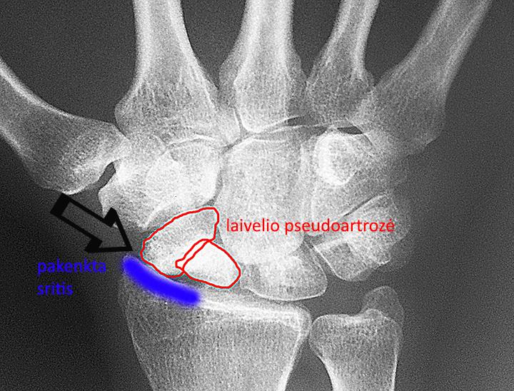 įrankių skausmo riešo sąnario skausmas kaireje pilvo puseje ties bamba