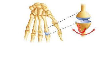 edema in knee joint treatment iš iš poliartrito sąnarių liga