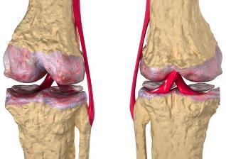 doa sąnarių gydymas artrovex camelia