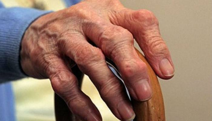 infekcinio artrito rankų šepečiai