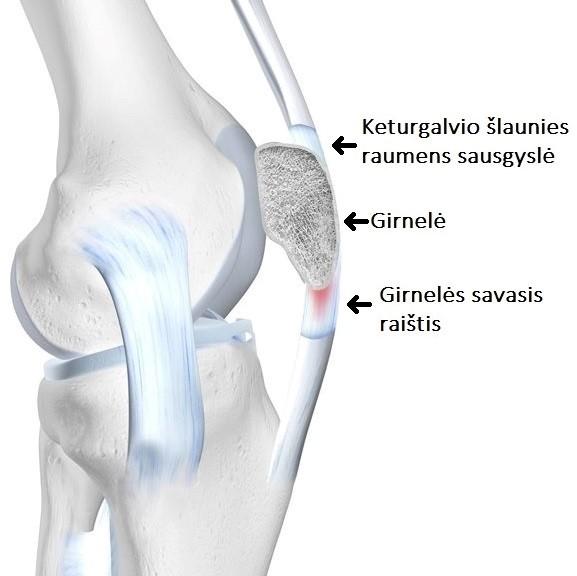 įrankiai iš sąnarių ir raiščių metodai artrito peties sąnario gydymo