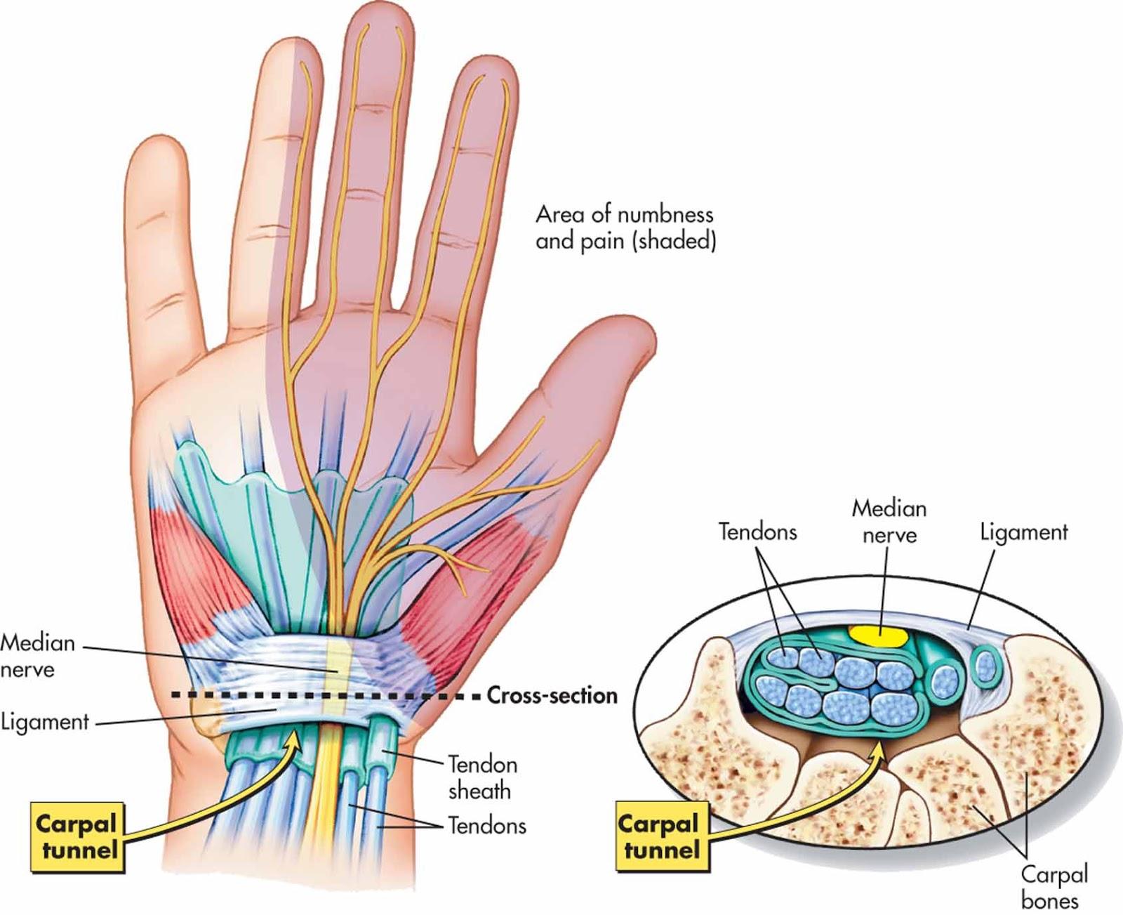 riešo raiščių plyšimas rampa-m per peties sąnario artrozės