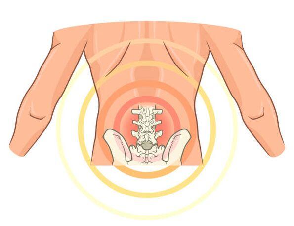 kremas nuo osteochondrozės gydymui skraidymas skausmo sąnarių
