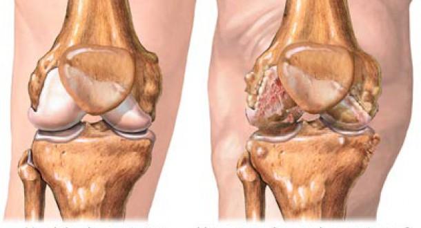 osteoartrito gydymas