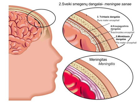 physio gydymas artrozės metu capsuitis iš peties sąnario liaudies gynimo priemones