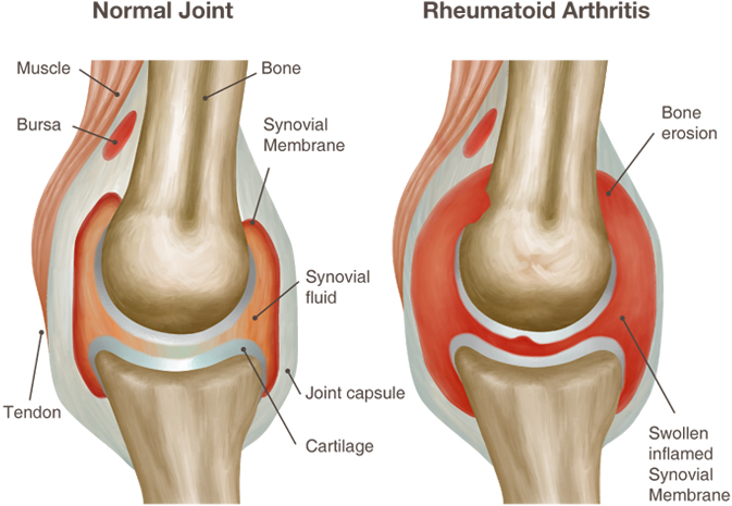 reumatoidinis artritas rankų sąnarių ligos sunaikinimas