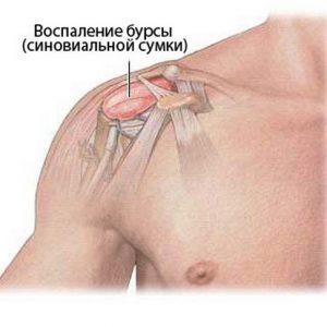 skauda kaires rankos raumenis gydymas junk grybais