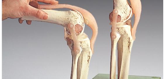 katalogas ligų sąnarių priežastys uždegimas kaulų sąnarių