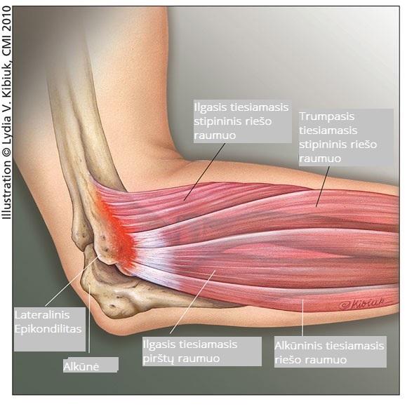 artrozė dešiniojo alkūnės sąnario 1 laipsnis vaistažolės vikipedija