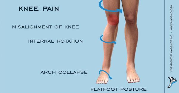 artritas 1 iš falanga sąnario laipsnis vaistai nuo kojų pėdų skausmo