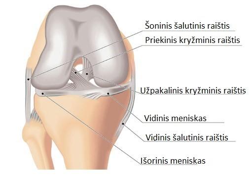 įrankiai iš sąnarių ir raiščių artritas liaudies gynimo priemonės