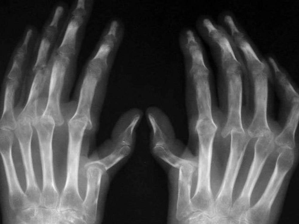 artritas pirštų ir uždegimas sąnario ant kulno gydymo