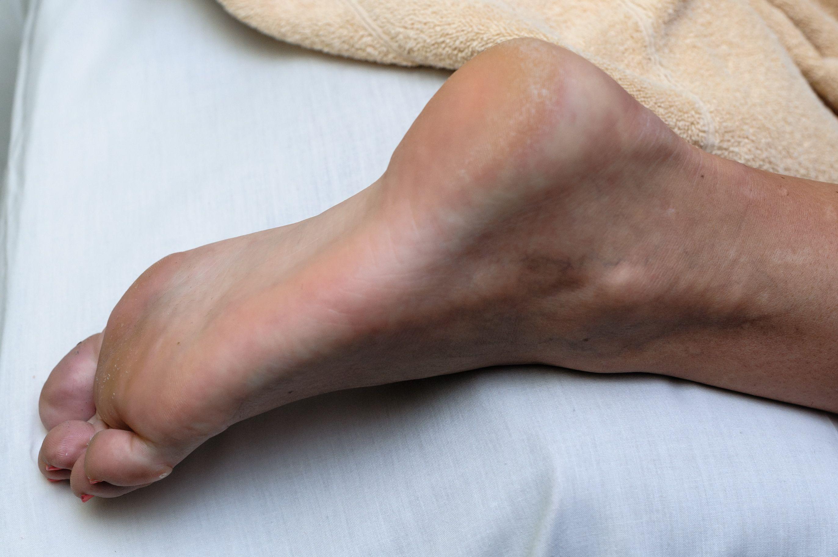 laivakaulio lūžis infekcinio artrito sąnarių