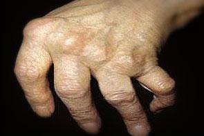 artritas šepečių rankos kur yra