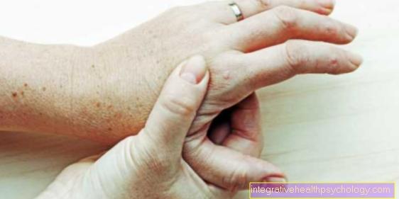 kaip pašalinti skausmą sąnariuose ant pirštų