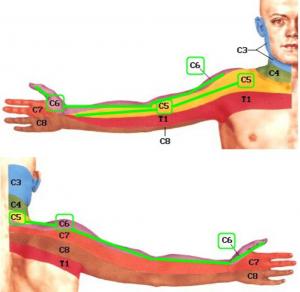 skausmas dešinėje alkūnės sąnario