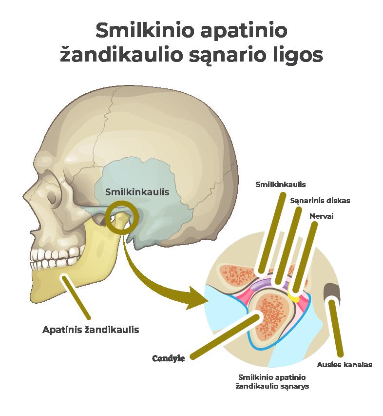 chirurgija artrosis gydymas