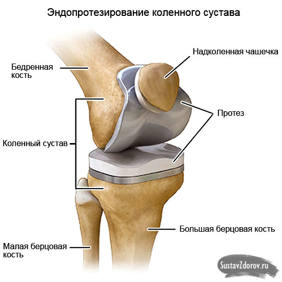 polyosteoarthrosis sąnarių pėdos gydymo