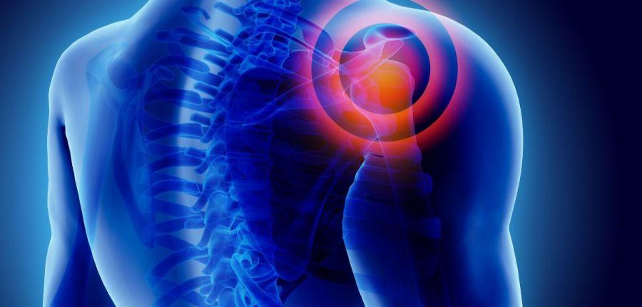 artrozė iš pirštų sąnarių tepalai ir geliai skausmui raumenų ir sąnarių