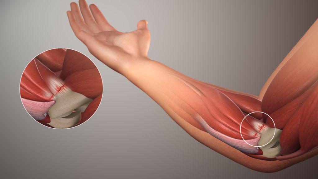 calen ir sąnarių gydymas koksartroze 2 stadija