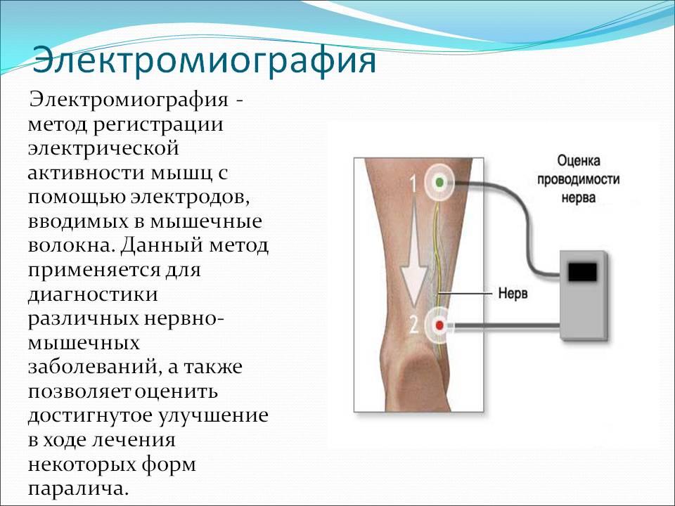 artritas bendra valymas aukso gerklės sąnarių