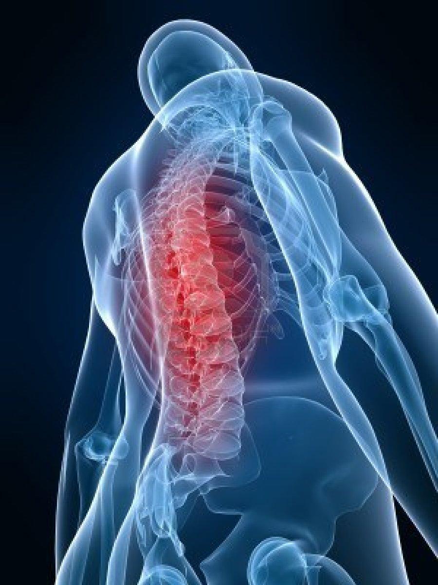 skausmas ne plaučių uždegimas sąnarių