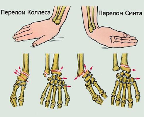 gydymas bendro dilbio nugaros skausmas gulint ant pilvo