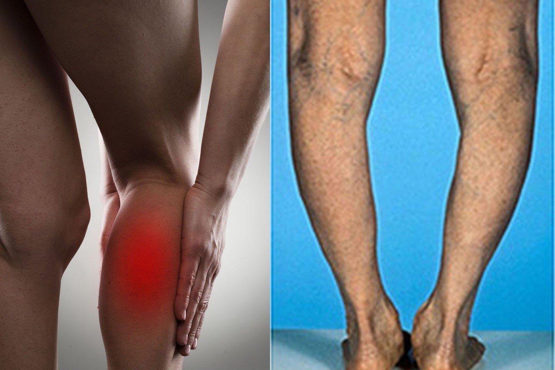 silpnumas sąnarių skausmas skausmas krutines apacioje