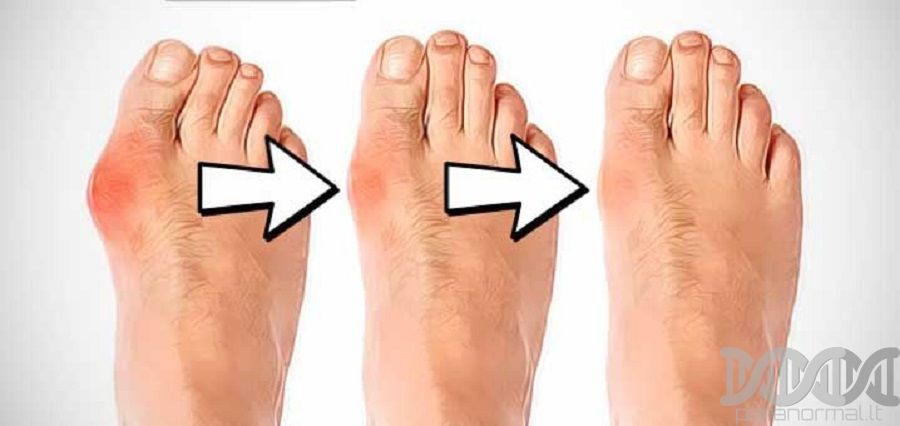 skraidymas sąnarių skausmas skausmas nuo kairės rankos plaštakoje viršūnės
