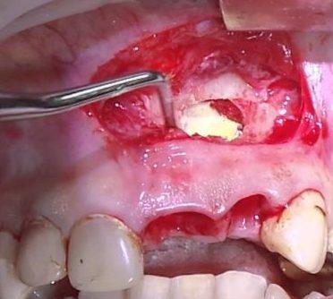 gliukozamino ir chondroitino dantų