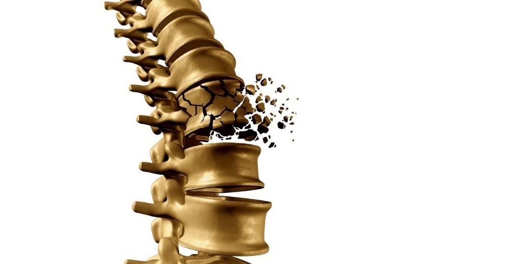 vaistai gydyti osteochondroze