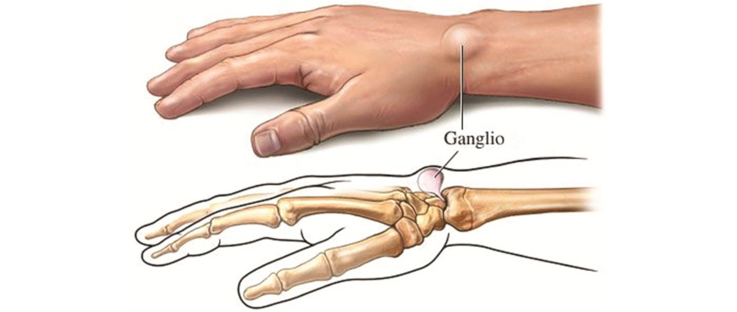 skausmas riešo sąnarius rankas rieso kanalo sindromo simptomai
