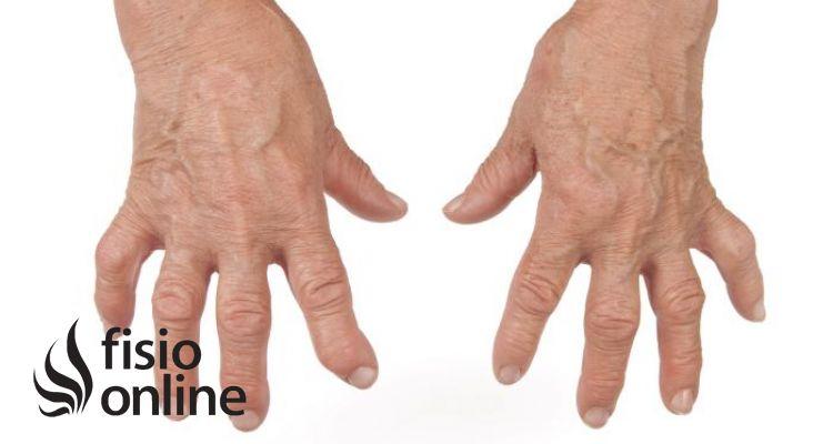 podagra gonagra bendra liga alkūnės